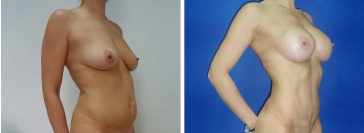 Liposukcija i povećanje grudi - bolnica Diona