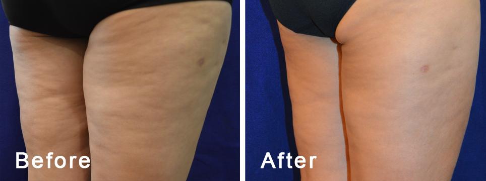 Body FX pre i posle tretmana
