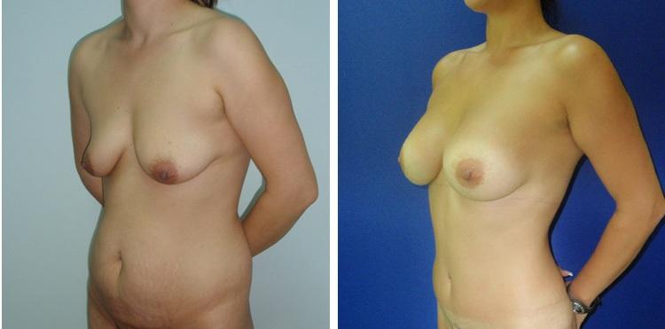 Liposukcija zatezanje stomaka i lifting grudi - bolnica Diona
