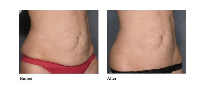 Vela shape pre i posle tri tretmana